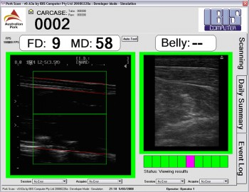 Ultrasound Image Analysis